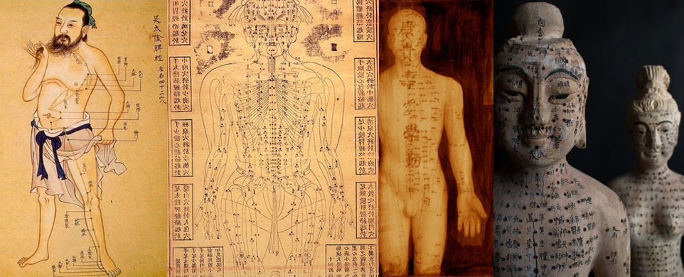ancient acupuncture